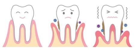 Higiene Oral - Mercat Sants Dental