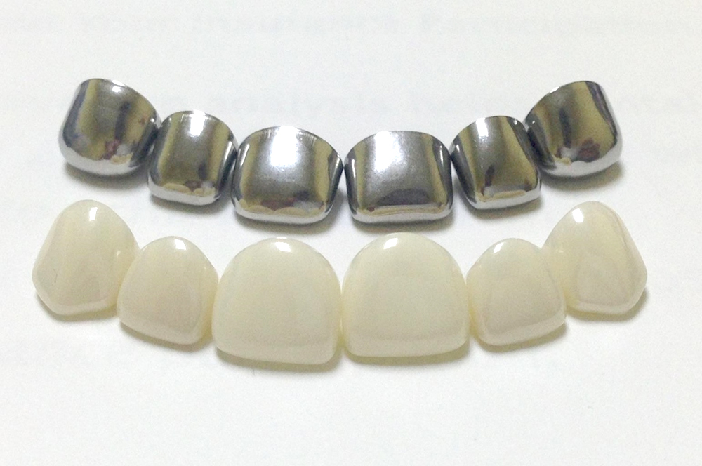Protesis dentales - Mercat Sants Dental