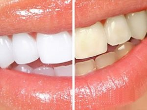Blanqueamiento dental - Mercat Sants Dental