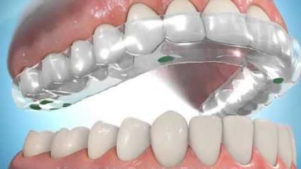 Bruxismo - Mercat Sants Dental