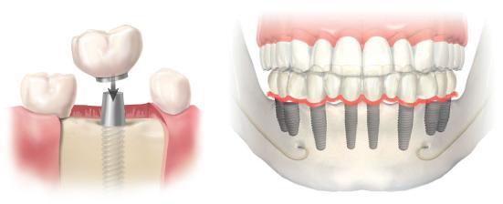 Implantologia dental - Mercat Sants Dental