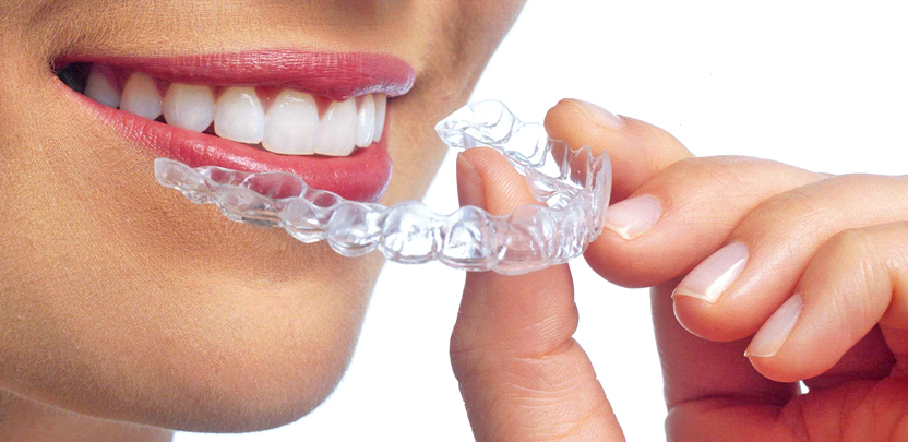 Ortodoncia -Mercat Sants Dental
